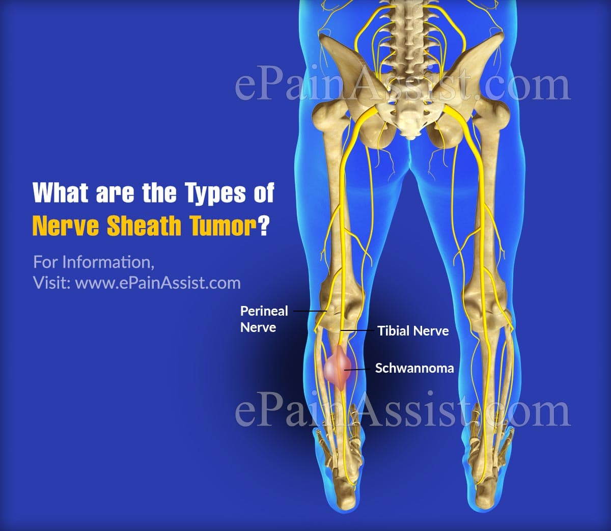 What Are The Types Of Nerve Sheath Tumor?