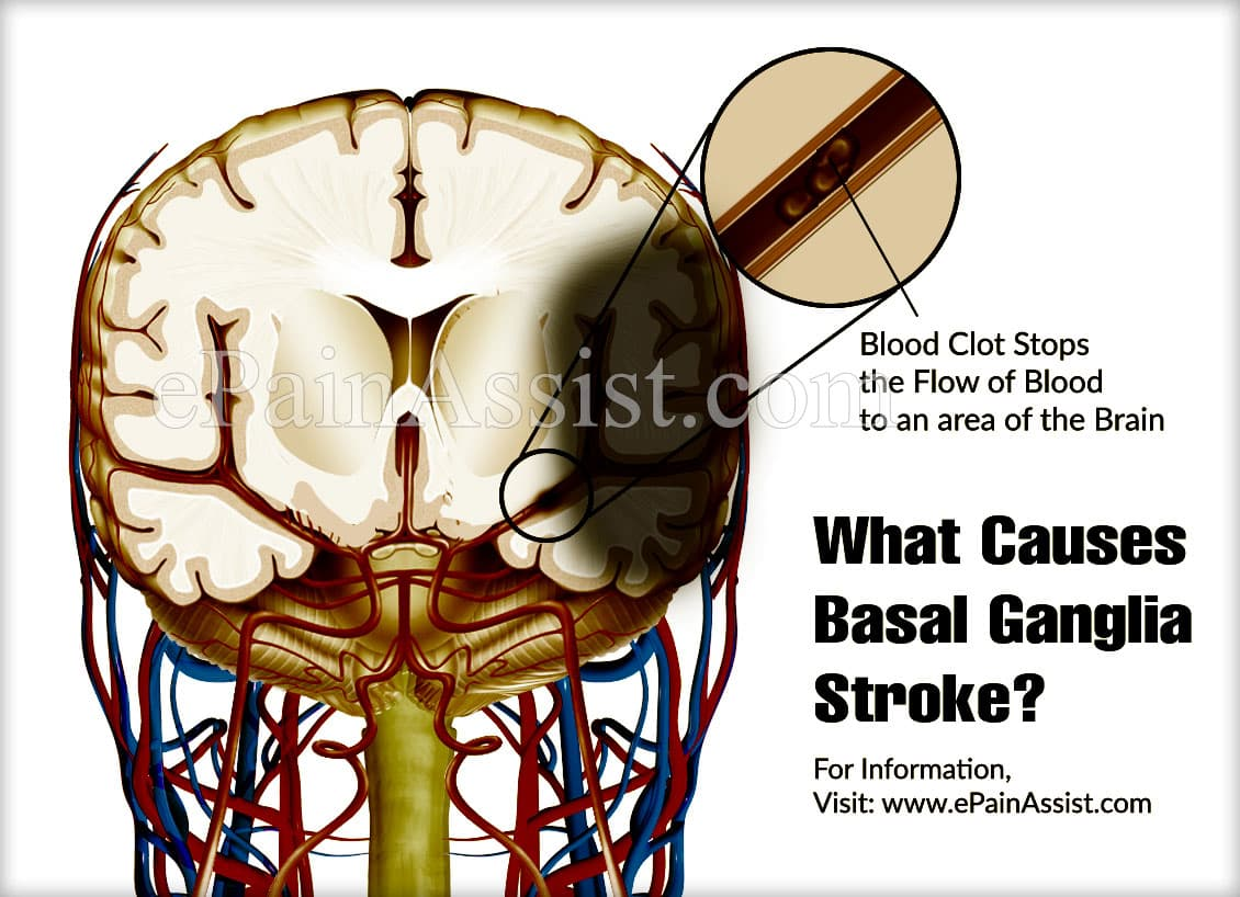 What Causes Basal Ganglia Stroke?