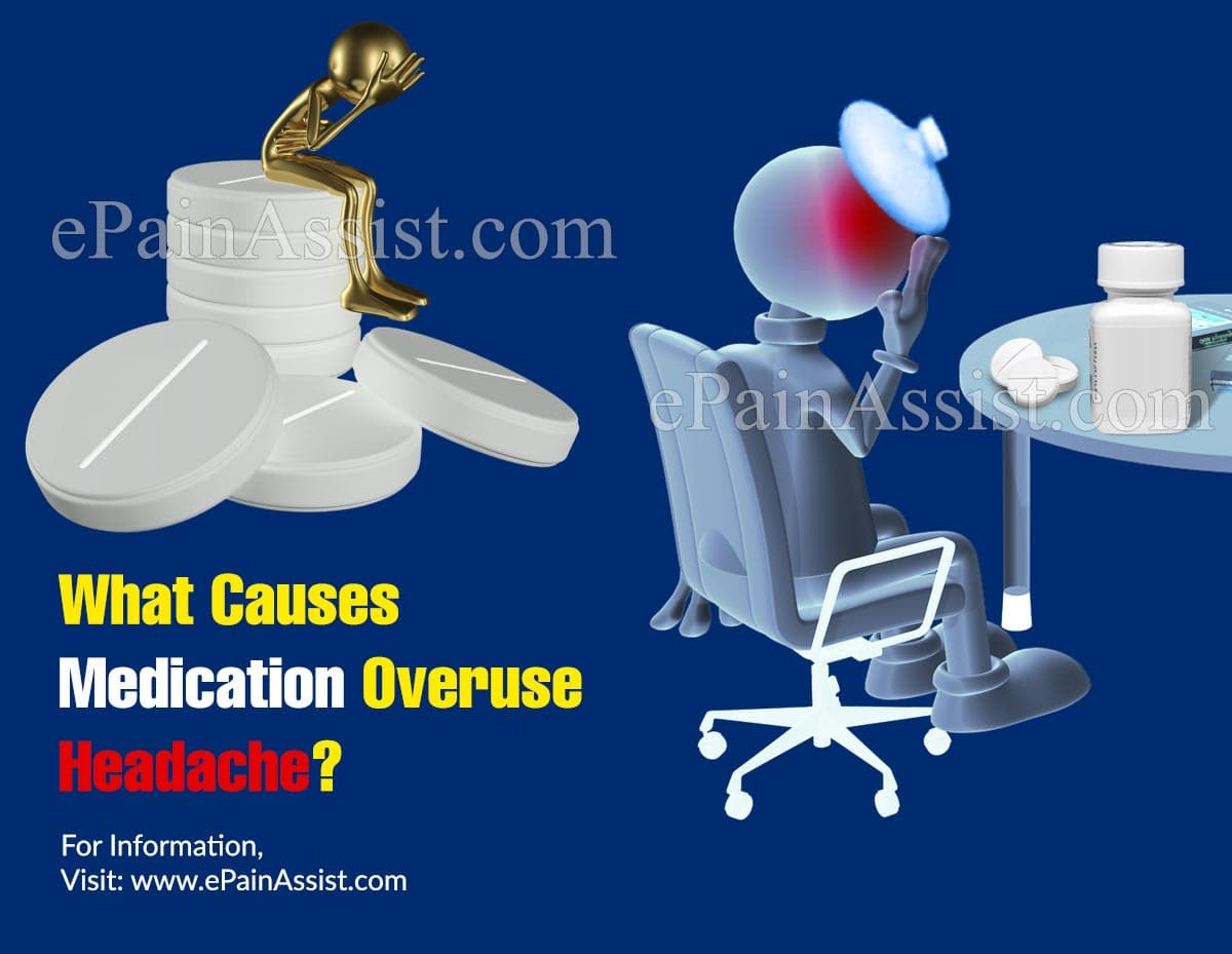 What Causes Medication Overuse Headache?