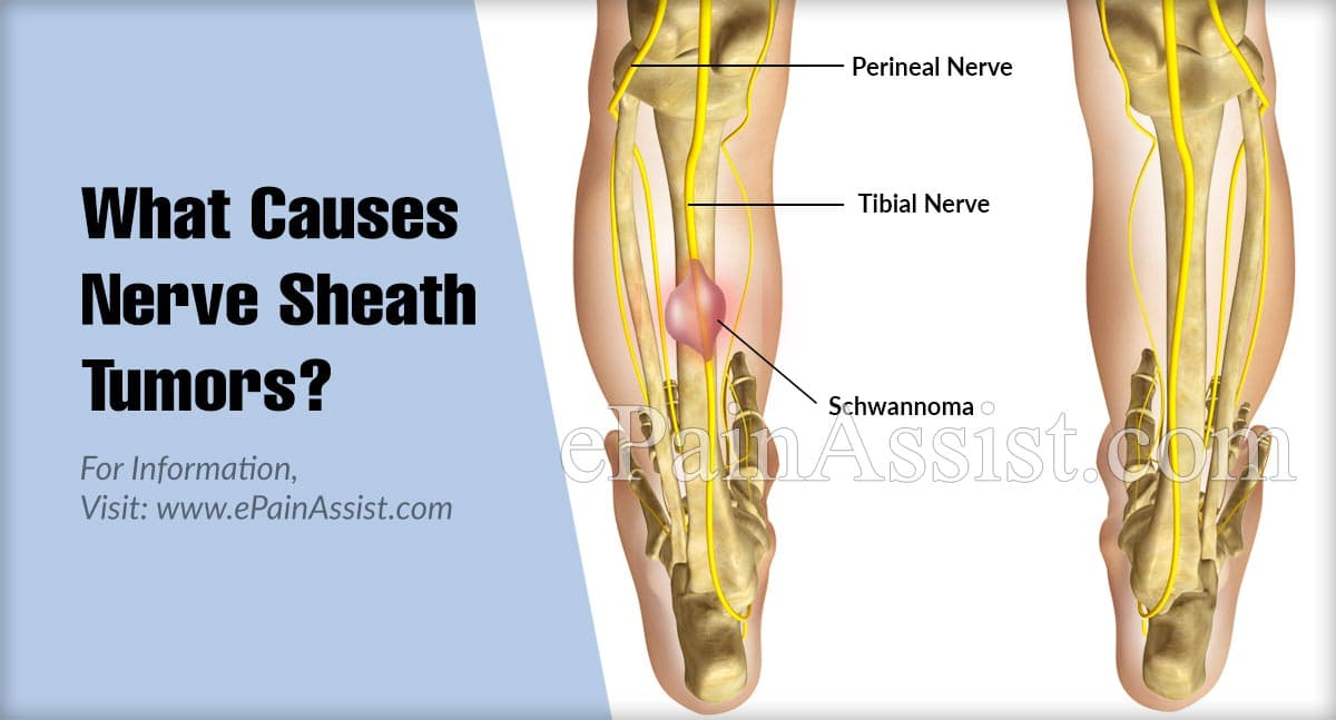 What Causes Nerve Sheath Tumors?