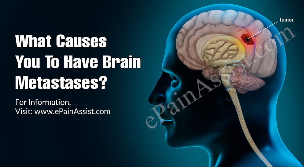 What Causes You To Have Brain Metastases?