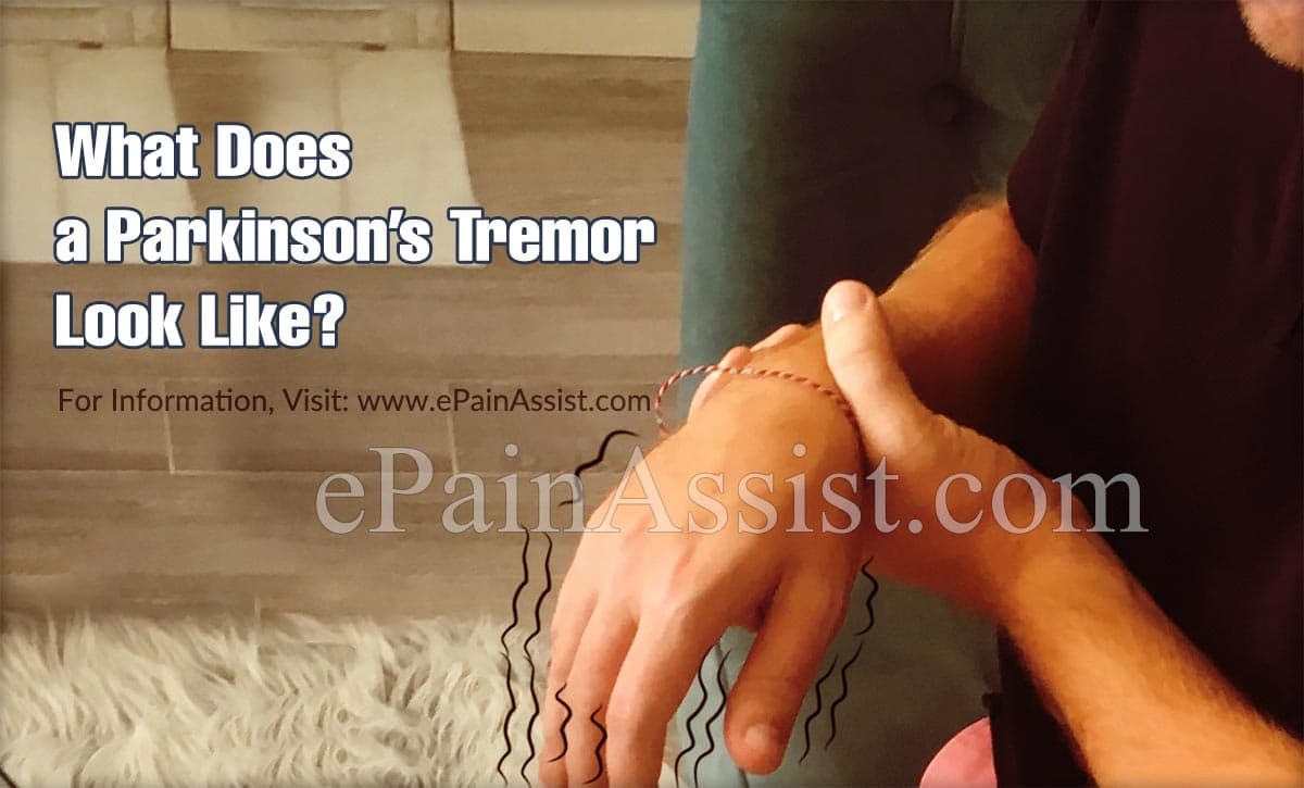 What Does a Parkinson's Tremor Look Like?