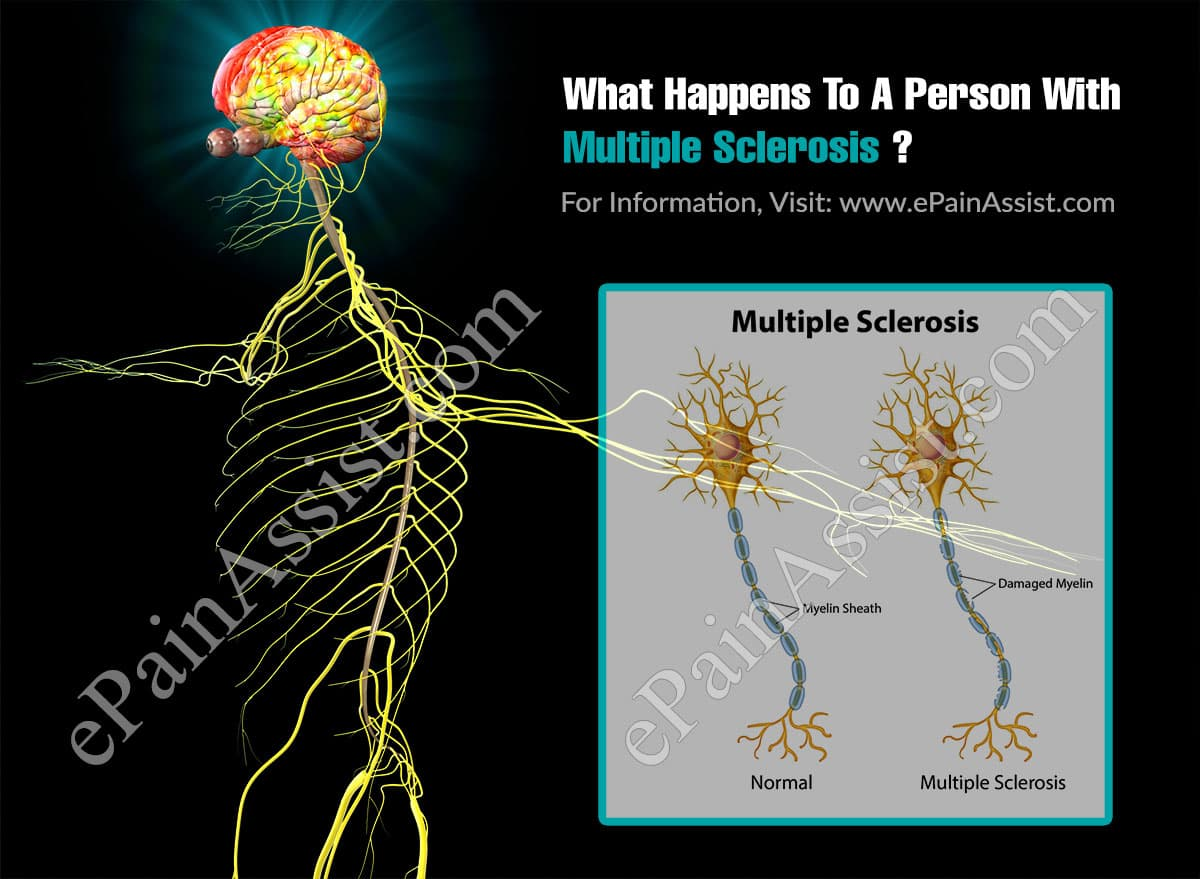 What Happens To A Person With Multiple Sclerosis?