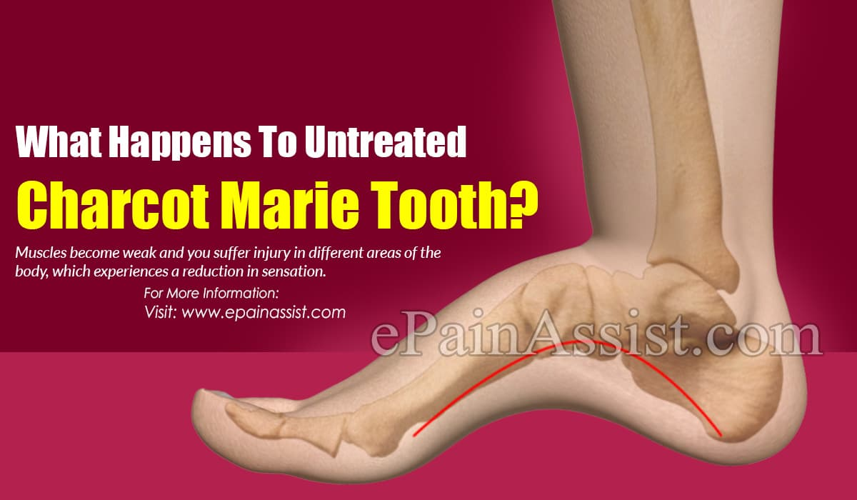 What Happens To Untreated Charcot Marie Tooth?