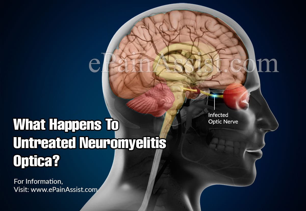 What Happens To Untreated Neuromyelitis Optica?