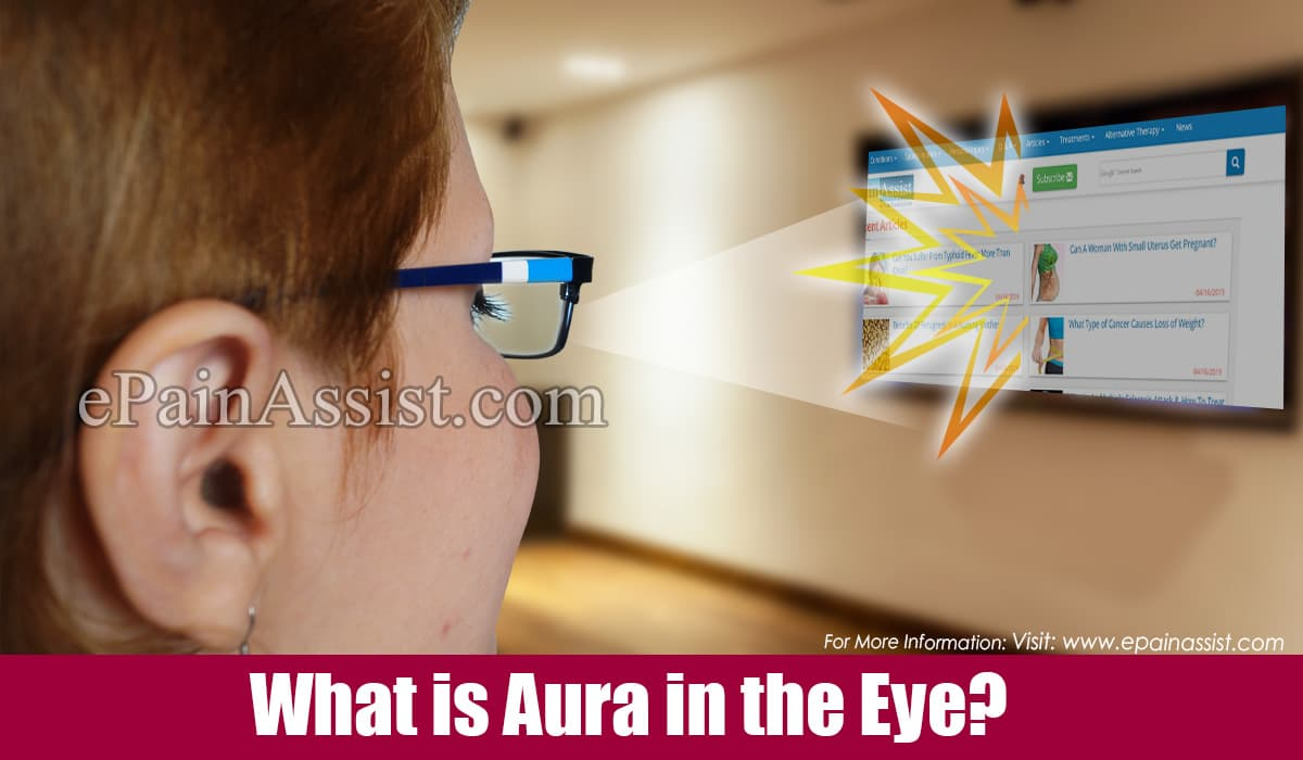 What is Aura in the Eye?