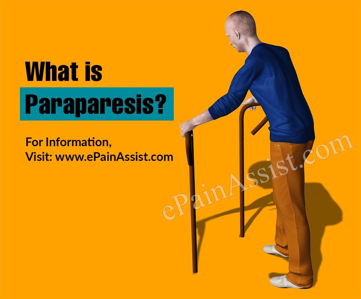 What is Paraparesis?