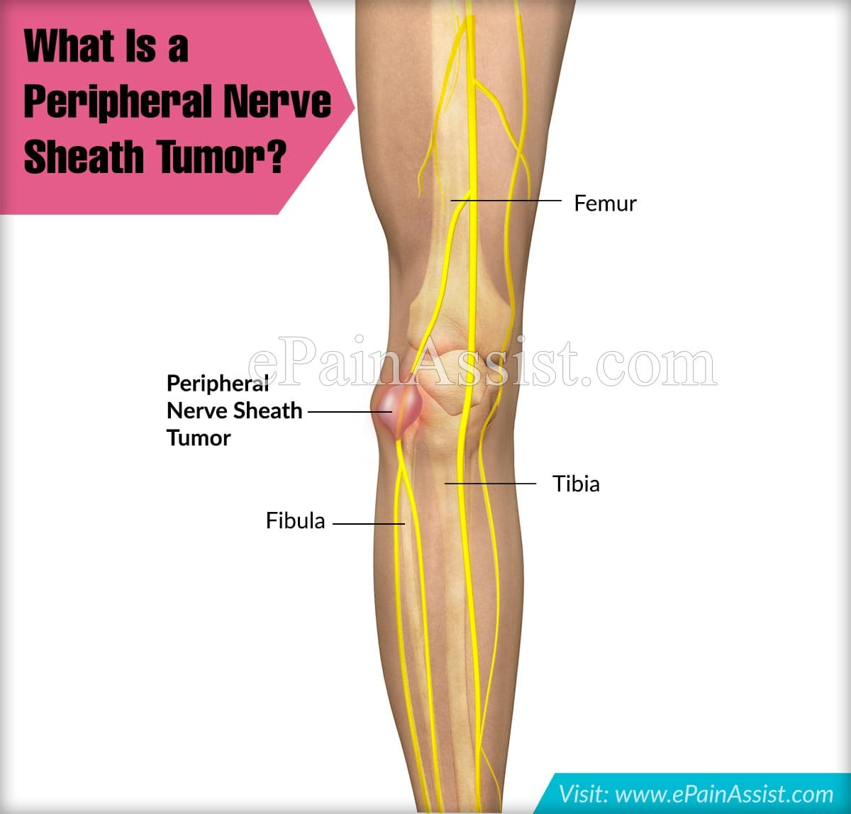 What Is A Peripheral Nerve Sheath Tumor?