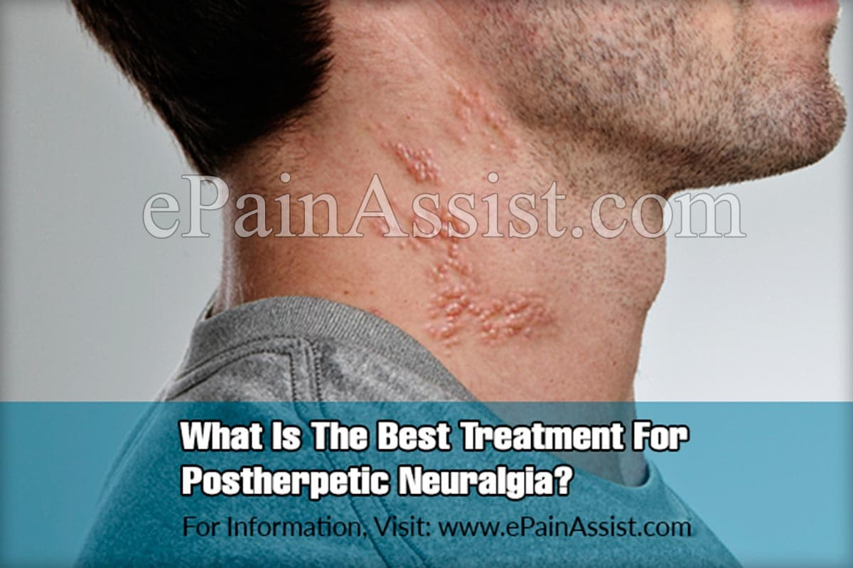 What Is The Best Treatment For Postherpetic Neuralgia?
