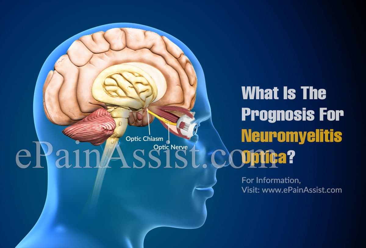 What Is The Prognosis For Neuromyelitis Optica?
