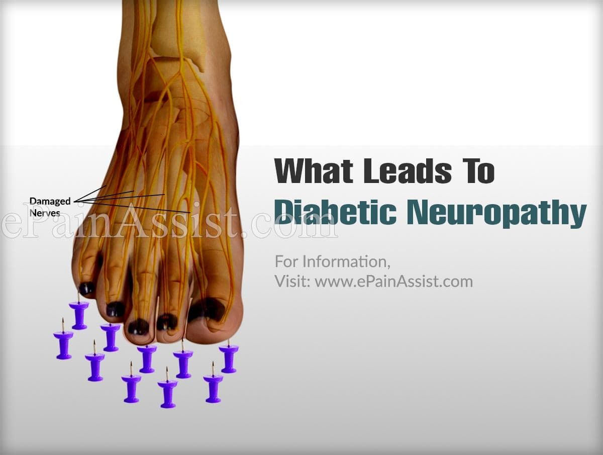 What Leads To Diabetic Neuropathy ?