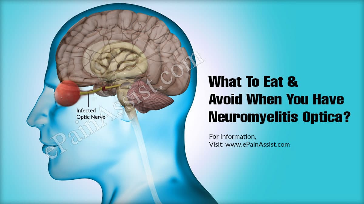 What To Eat & Avoid When You Have Neuromyelitis Optica?