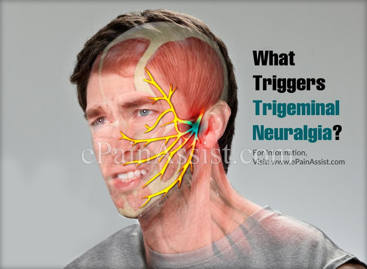 What Triggers Trigeminal Neuralgia?