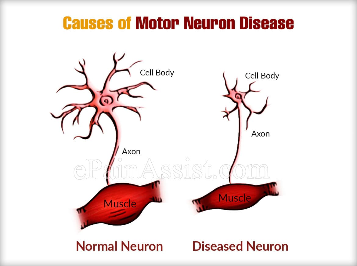 Causes of Motor Neuron Disease or MNDs