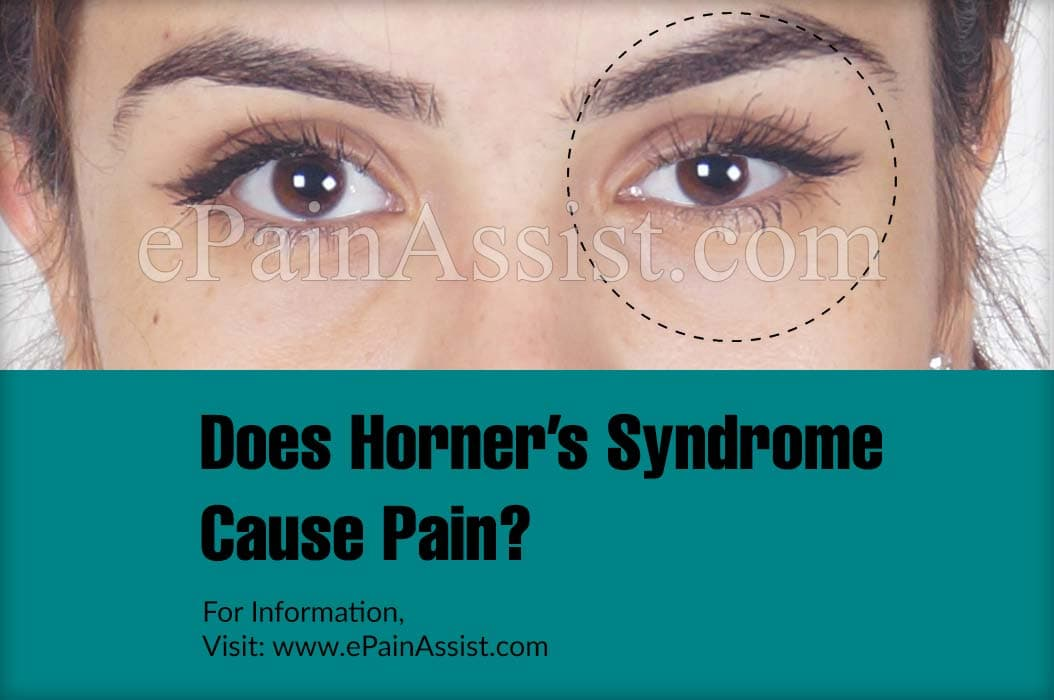 Does Horner's Syndrome Cause Pain?