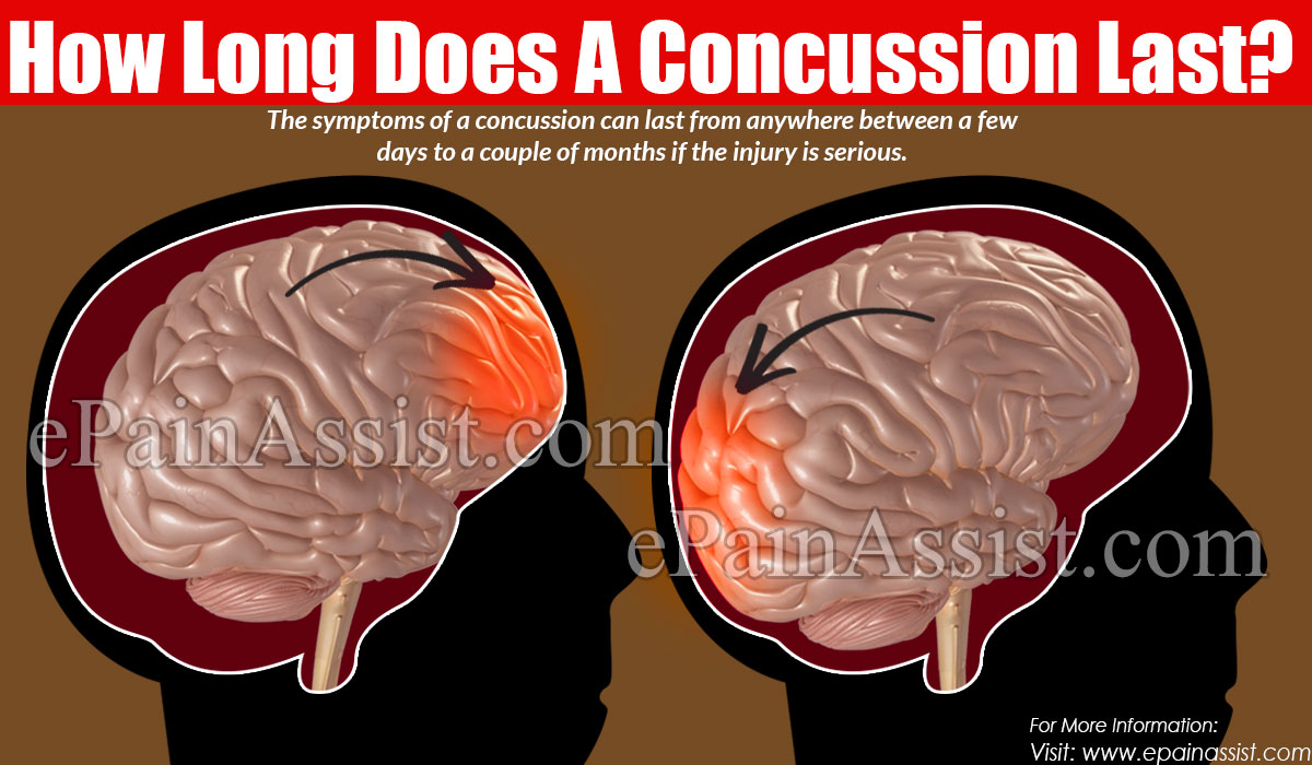 How Long Does A Concussion Last ?