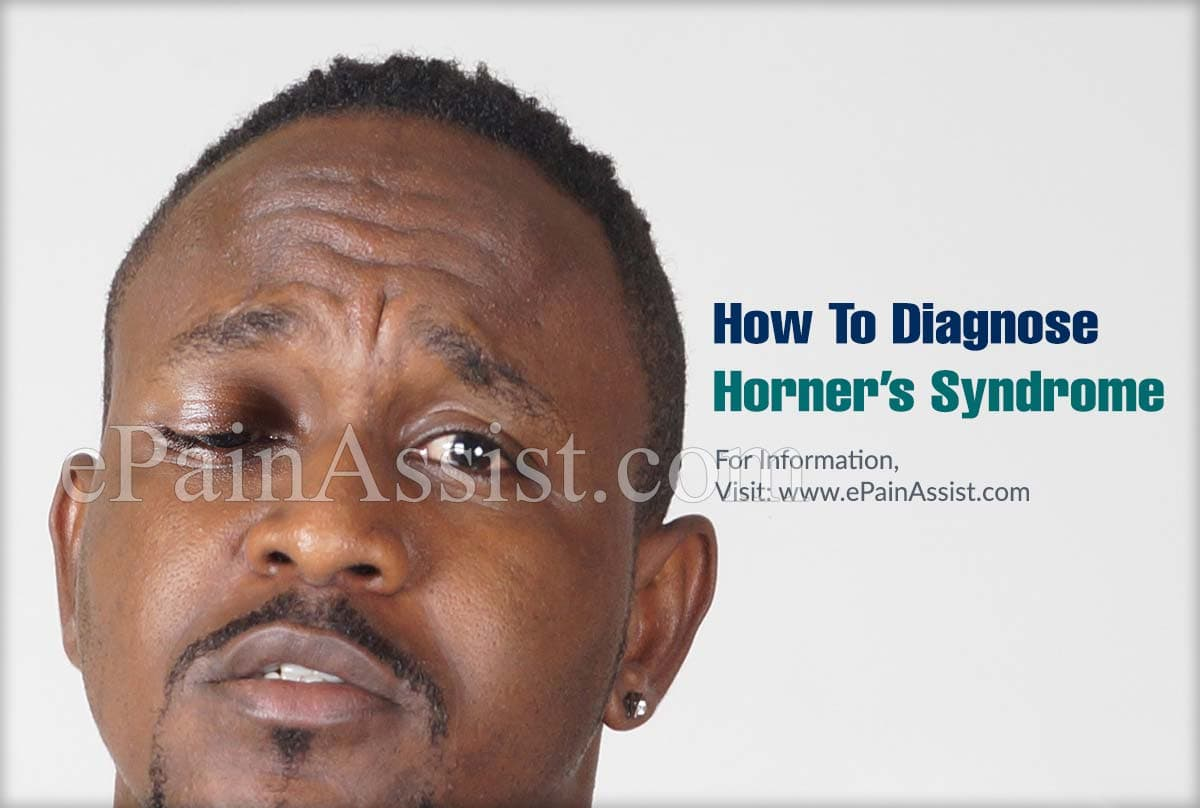 How To Diagnose Horner's Syndrome?