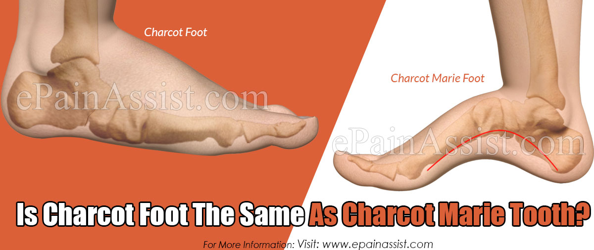 Is Charcot Foot The Same As Charcot Marie Tooth?