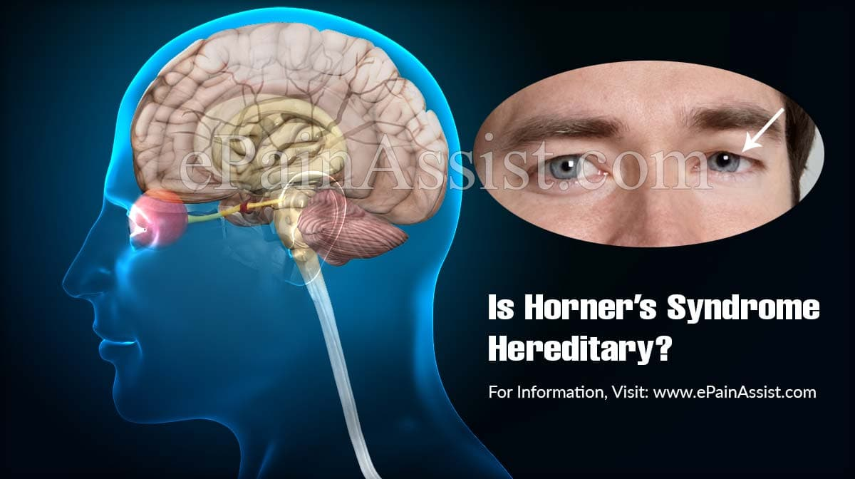 Is Horner's Syndrome Hereditary?