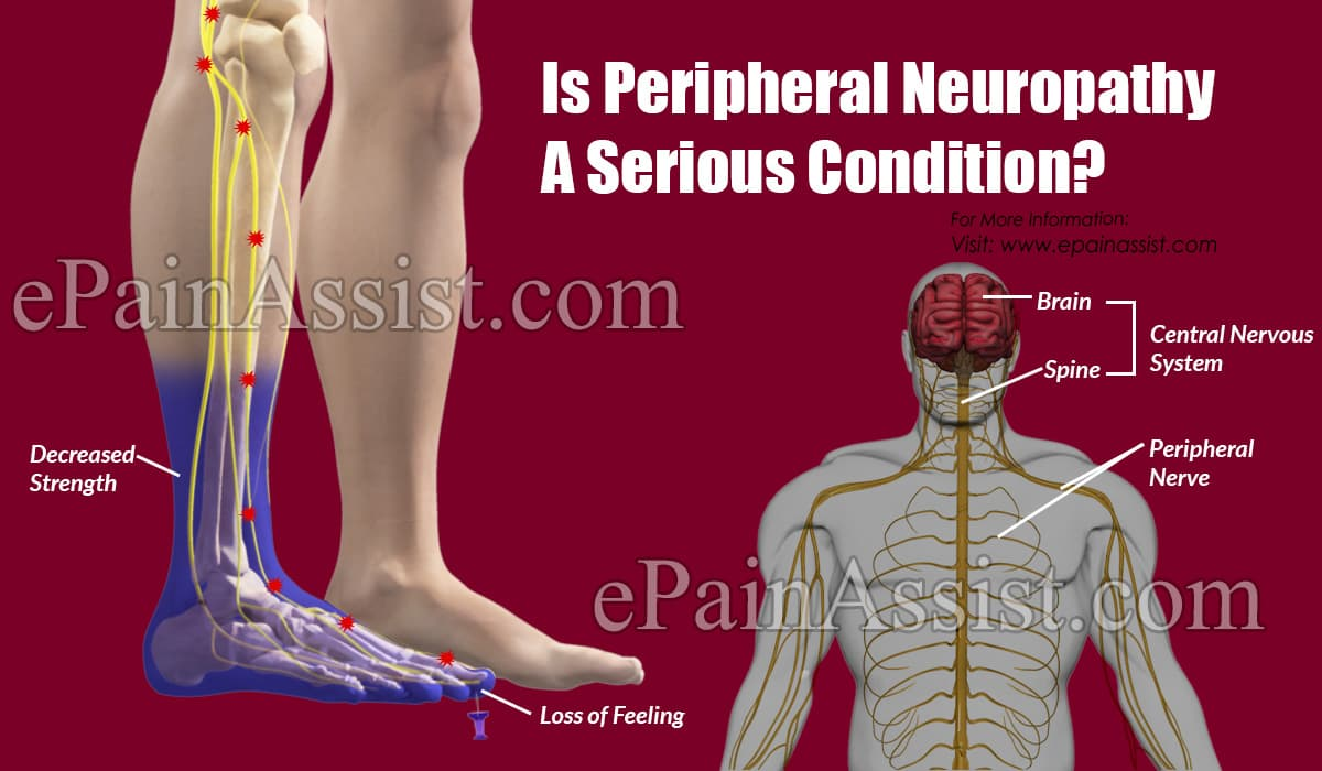 Is Peripheral Neuropathy A Serious Condition?