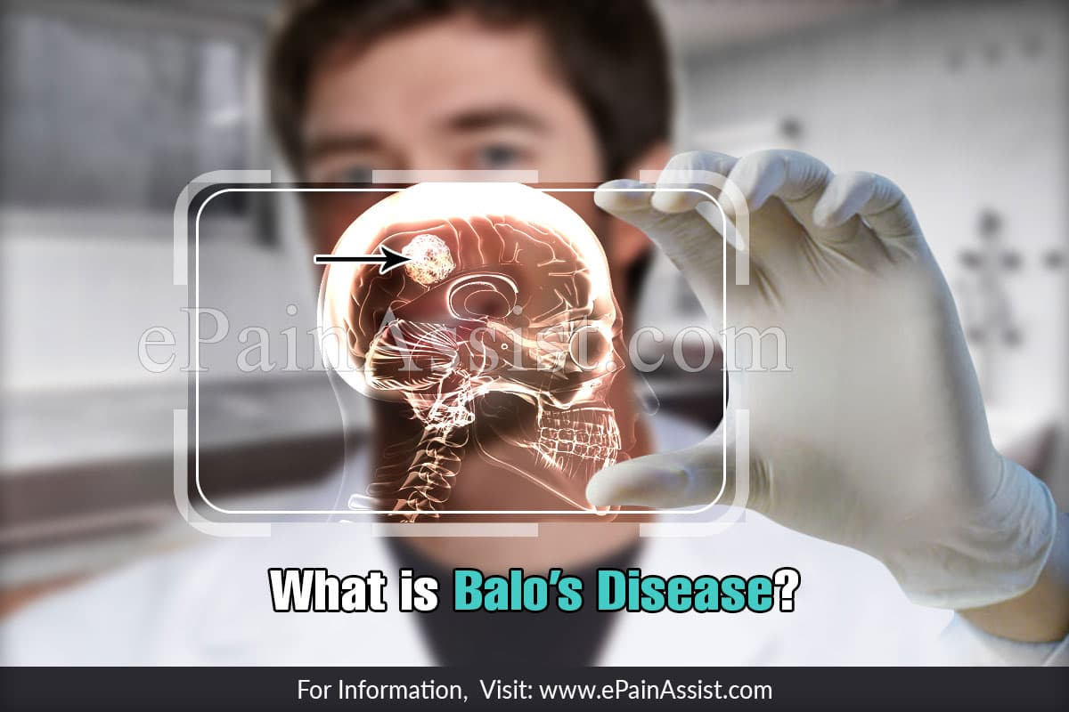 What is Balo's Disease?
