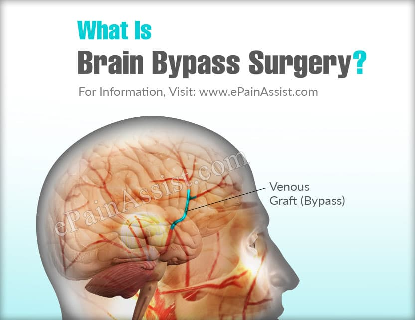 What Is Brain Bypass Surgery?