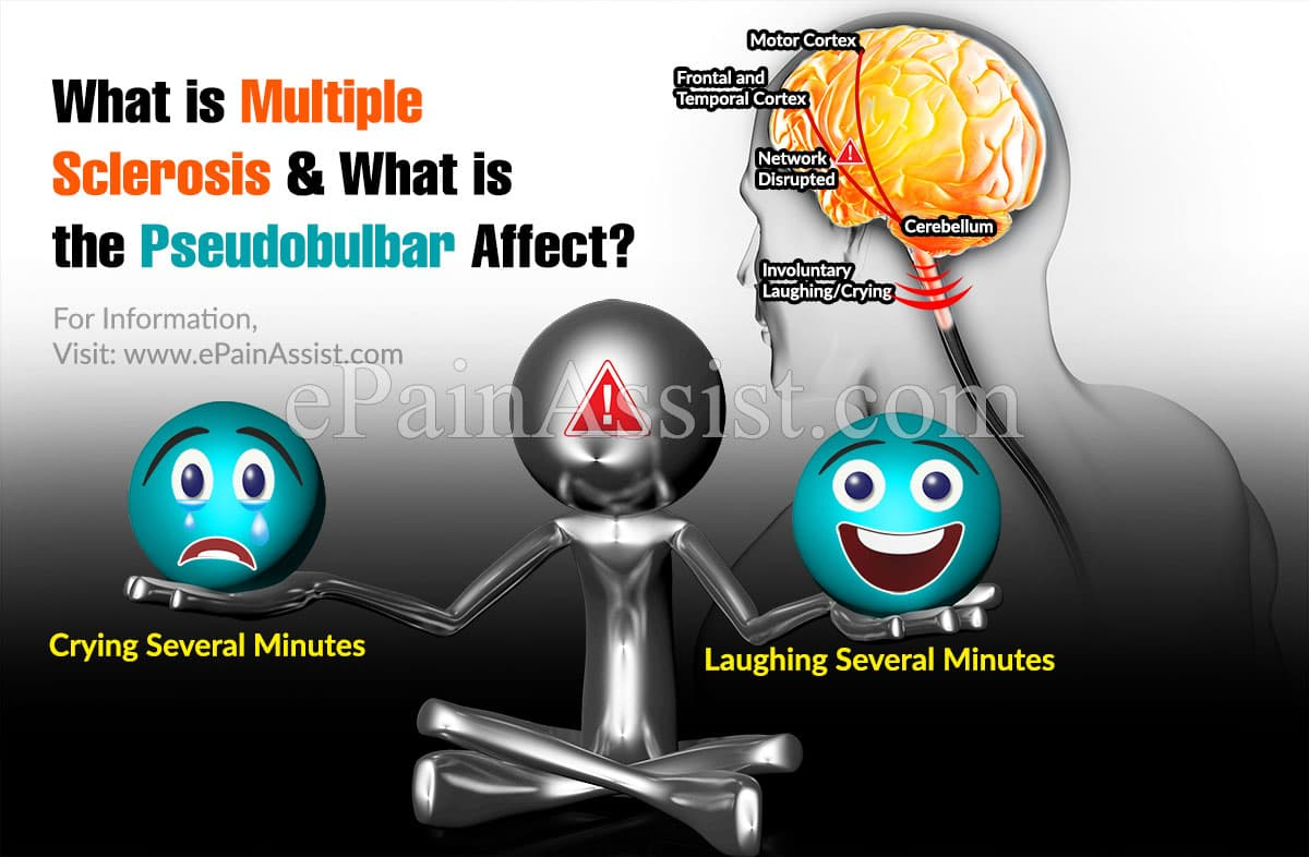 What is Multiple Sclerosis and What is the Pseudobulbar Affect?