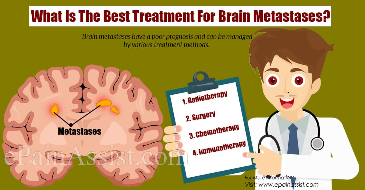 What Is The Best Treatment For Brain Metastases?