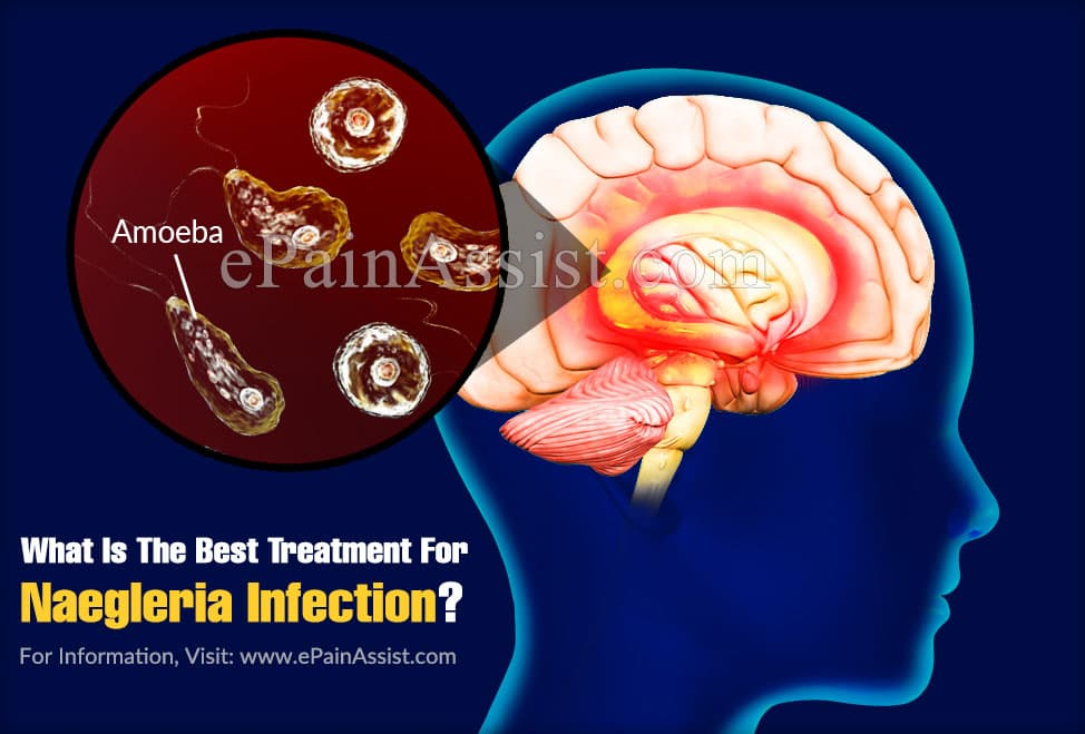 What Is The Best Treatment For Naegleria Infection?
