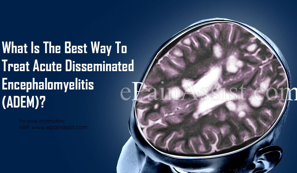 What Is The Best Way To Treat Acute Disseminated Encephalomyelitis (ADEM)?