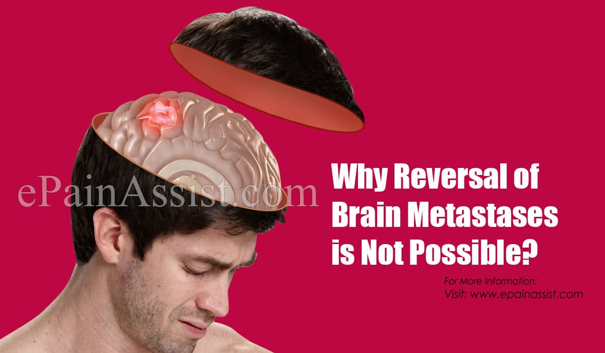 Why Reversal of Brain Metastases is Not Possible?