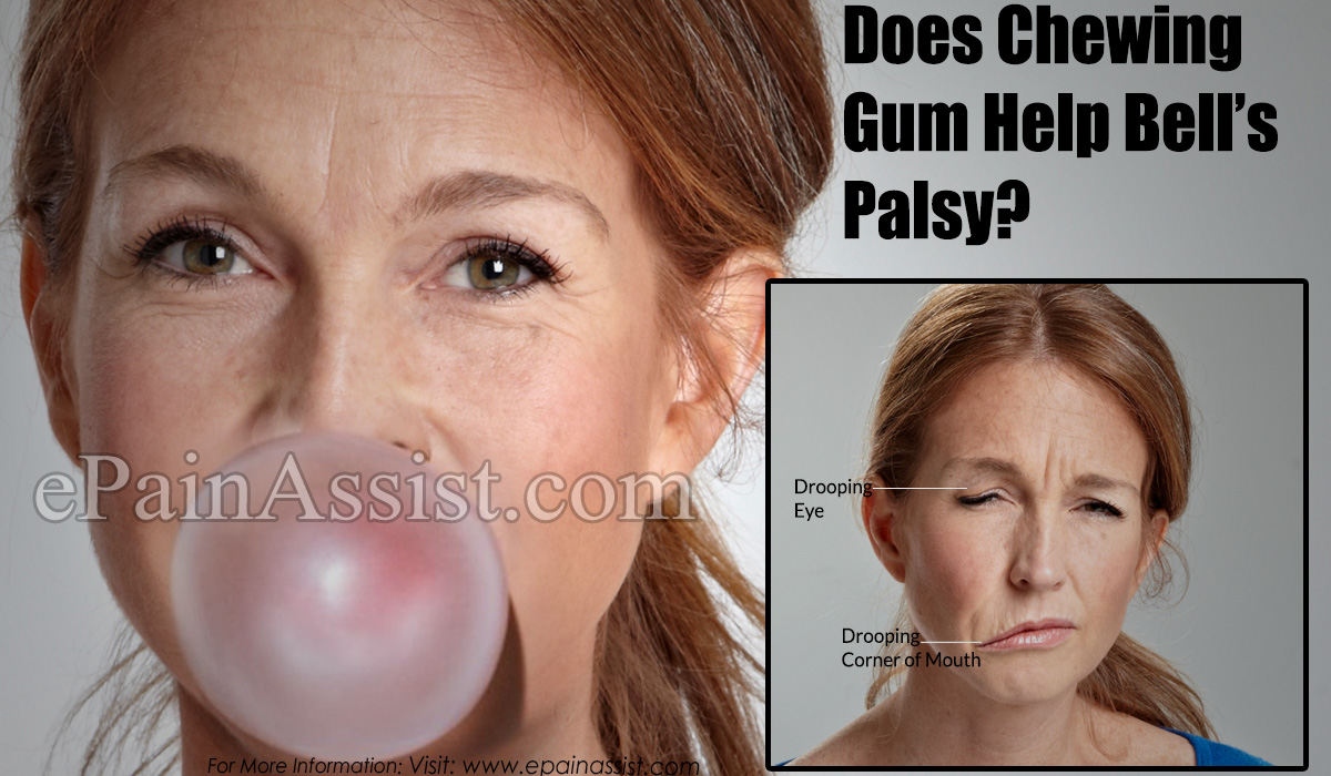 Does Chewing Gum Help Bell's Palsy?