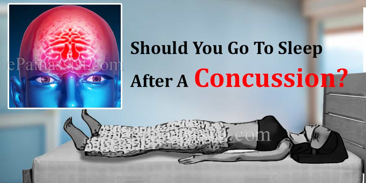 Should You Go To Sleep After A Concussion?