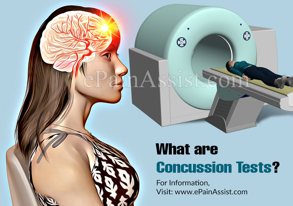 What are Concussion Tests?