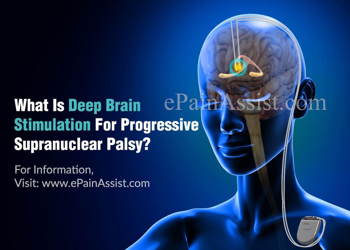 What Is Deep Brain Stimulation For Progressive Supranuclear Palsy?