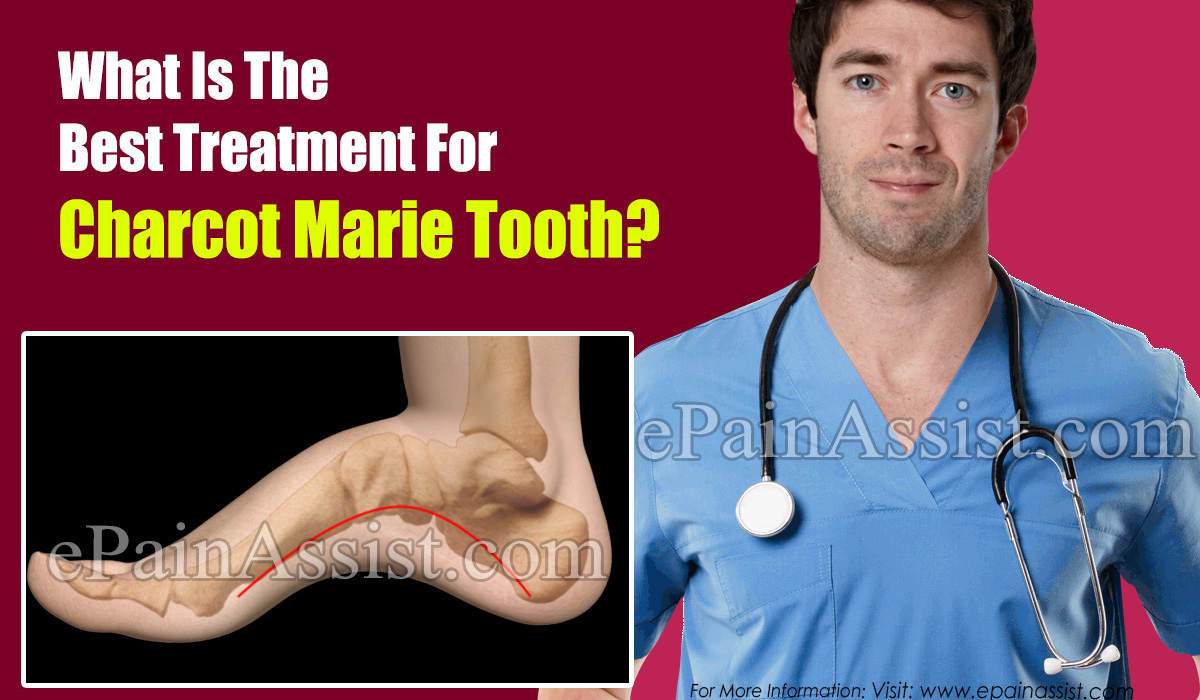 What Is The Best Treatment For Charcot Marie Tooth?