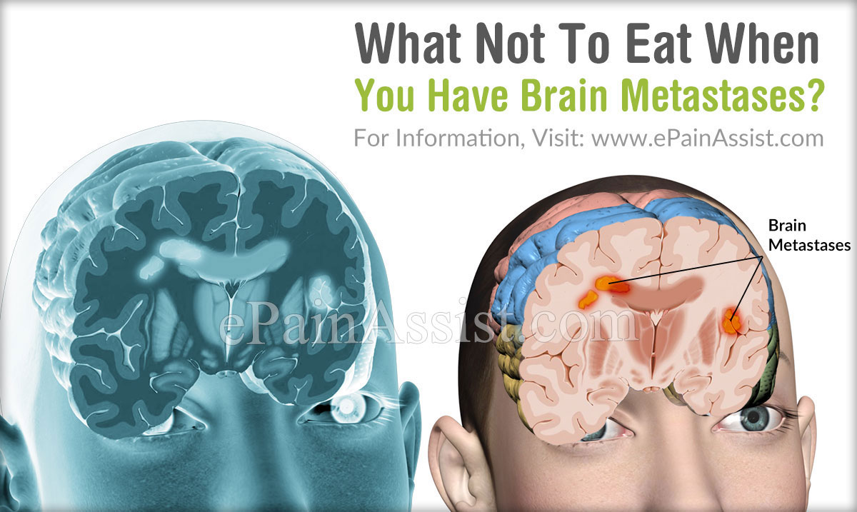 What Not To Eat When You Have Brain Metastases?