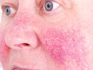 Excess Weight May Raise Rosacea Risk