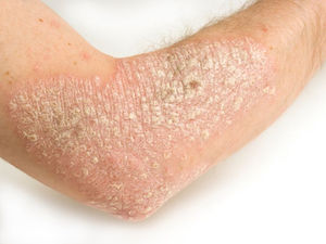 Severe Psoriasis May Make Diabetes Increasingly Likely