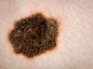 AI Better Than Docs at Catching Skin Cancers