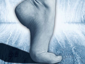 Are Costly Custom Insoles Worth It for Heel Pain?