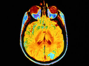 Brain Tumor Patients May Have Unlikely Ally: the Polio Virus