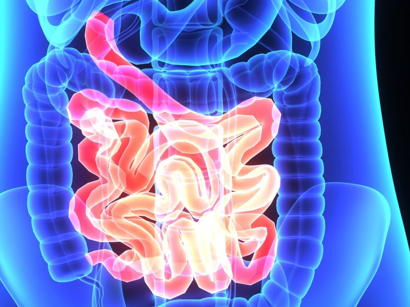 Early Screening of Colon Cancer Advised for Some