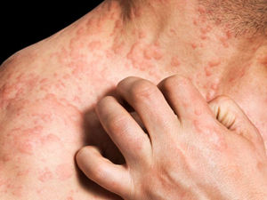 Eczema Dramatically Impacts Quality of Life