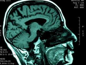 How Severe Brain Injuries Might Trigger Dementia