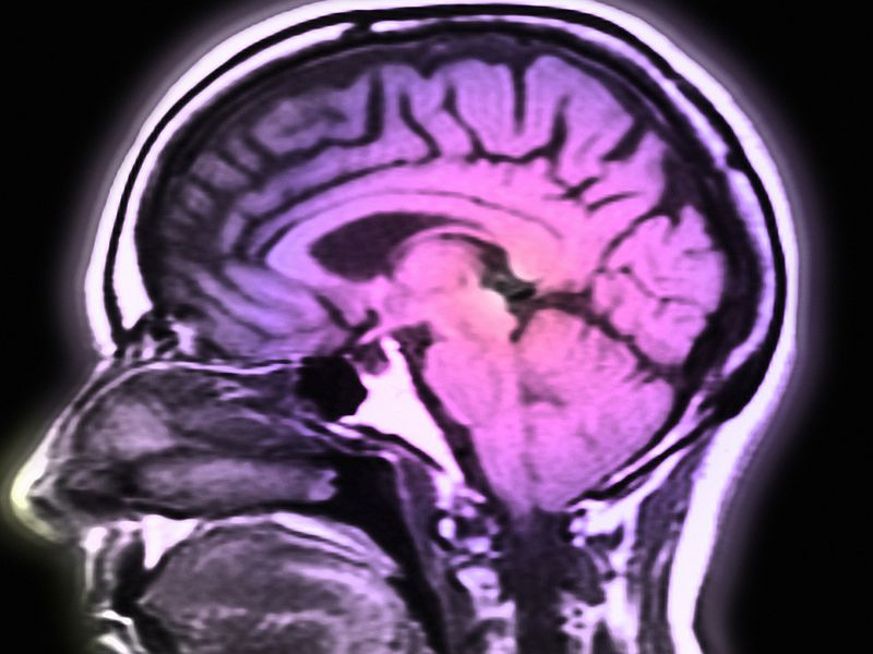 Immune-Based Therapy May Help When Melanoma Spreads to Brain