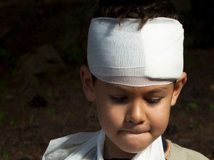 Injured Kids Can Have Lasting Mental Scars, Too