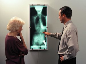 More Doubt Cast on Surgery for Spinal Compression Fractures