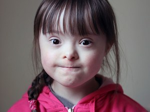 Naps Don't Help Down Syndrome Kids Learn: Study