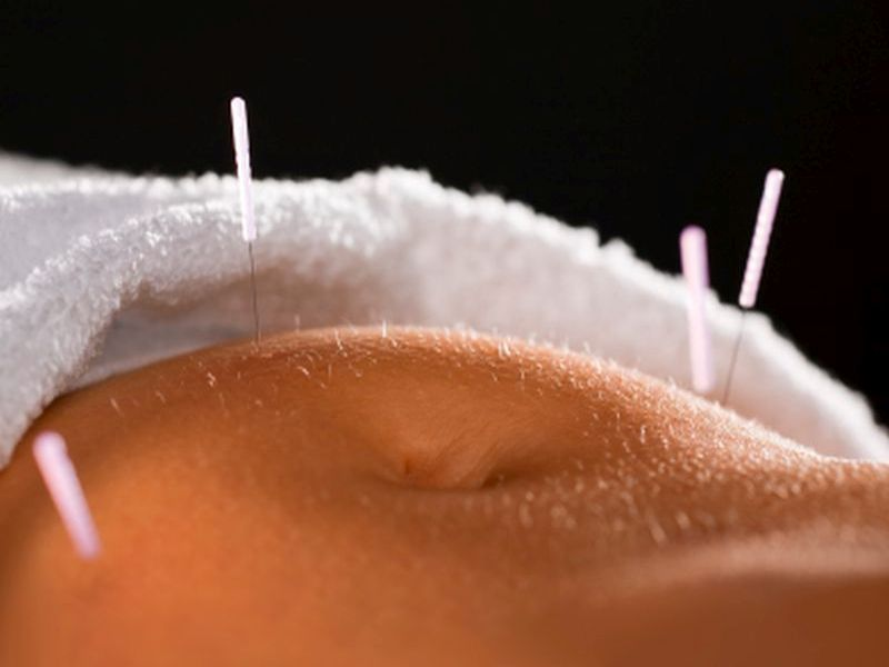 No Evidence Acupuncture Boosts Fertility Treatment